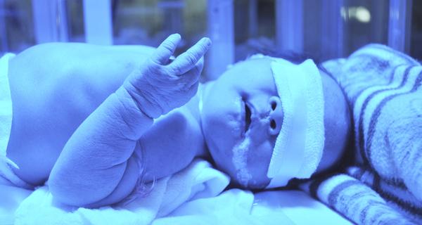 6 Petua Hilangkan Demam Kuning Bayi, Agar Tidak Berpanjangan